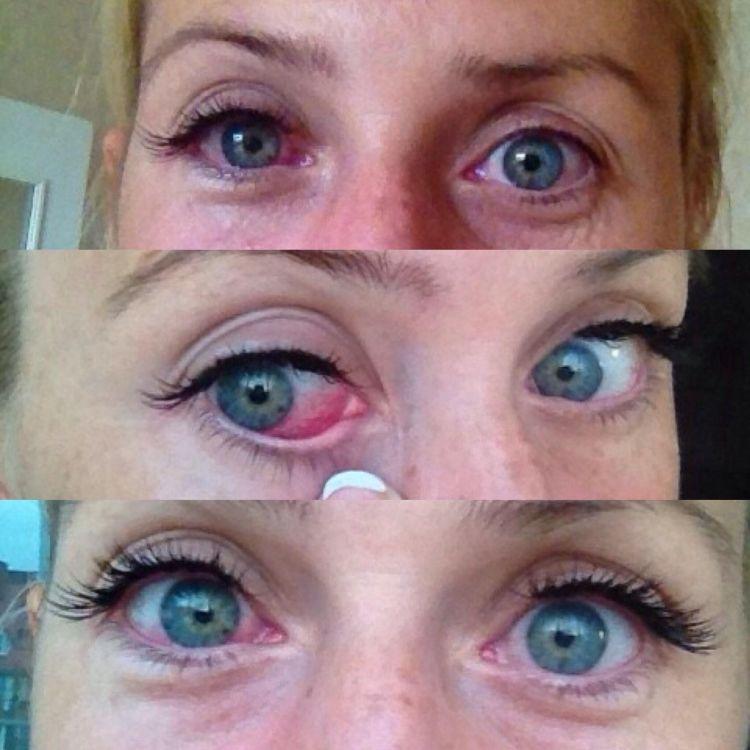 Если на протяжении двух часов после проведения процедуры глаза краснеют и слезятся — это нормально.